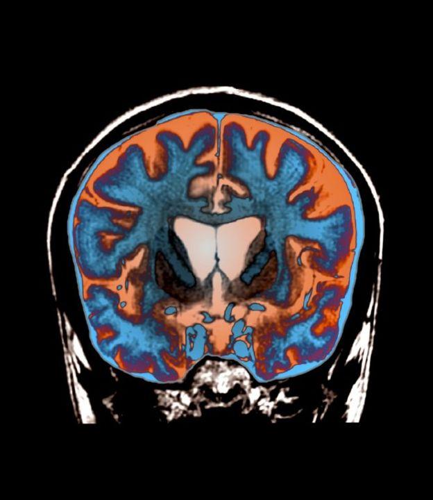 امآرآی از مغز جوان بیست و یک ساله مبتلا به هانتینگتون