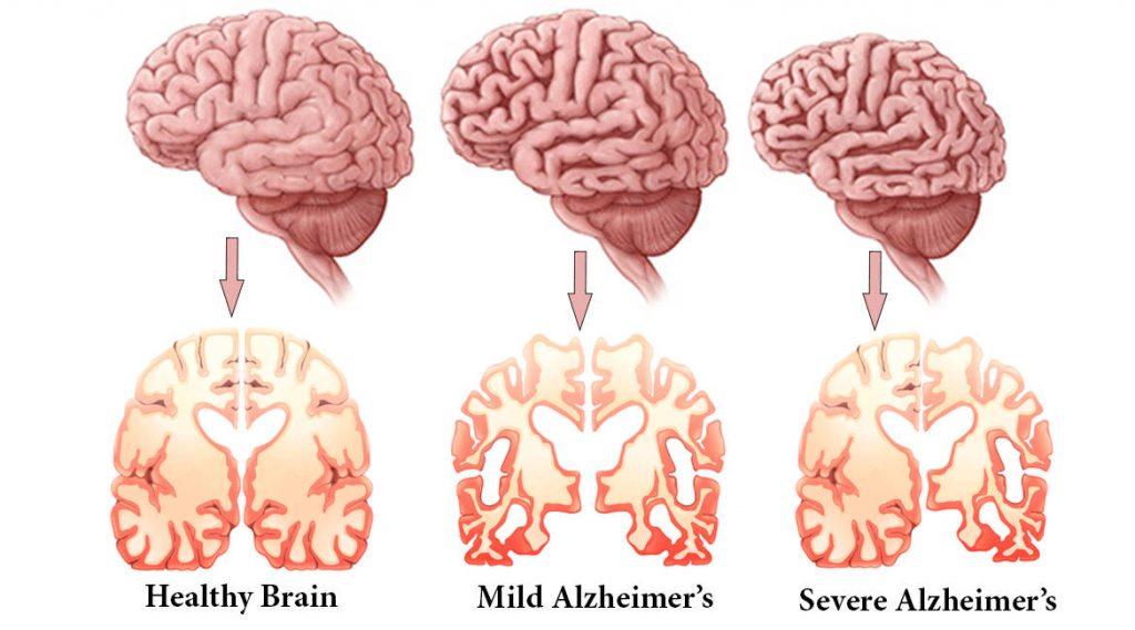 مغز بیماران آلزایمری