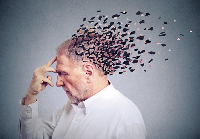 دلایل آلزایمر