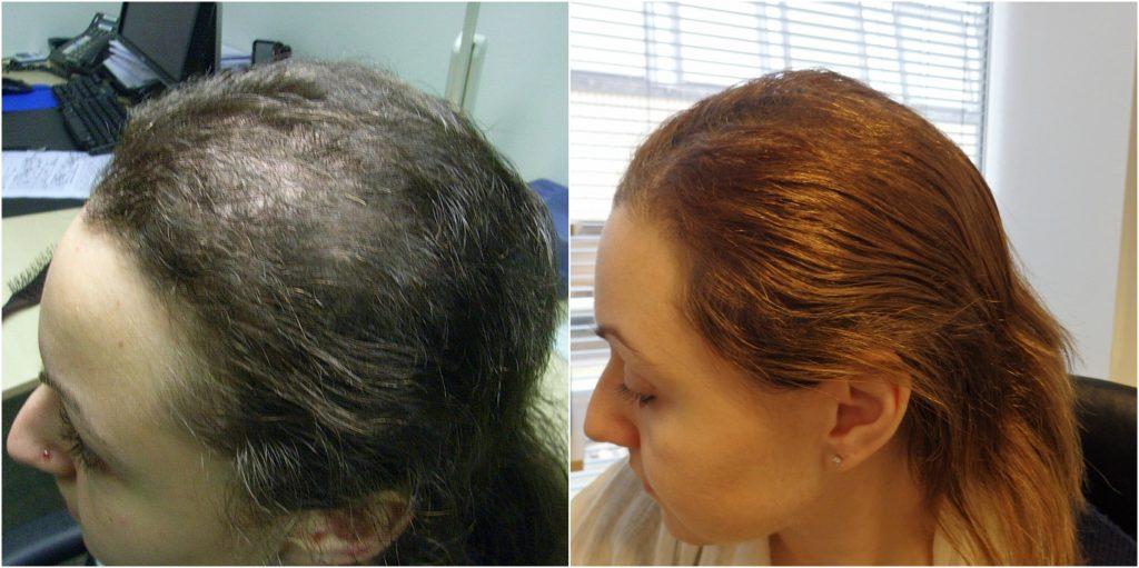 دلایل اختلال کندن مو